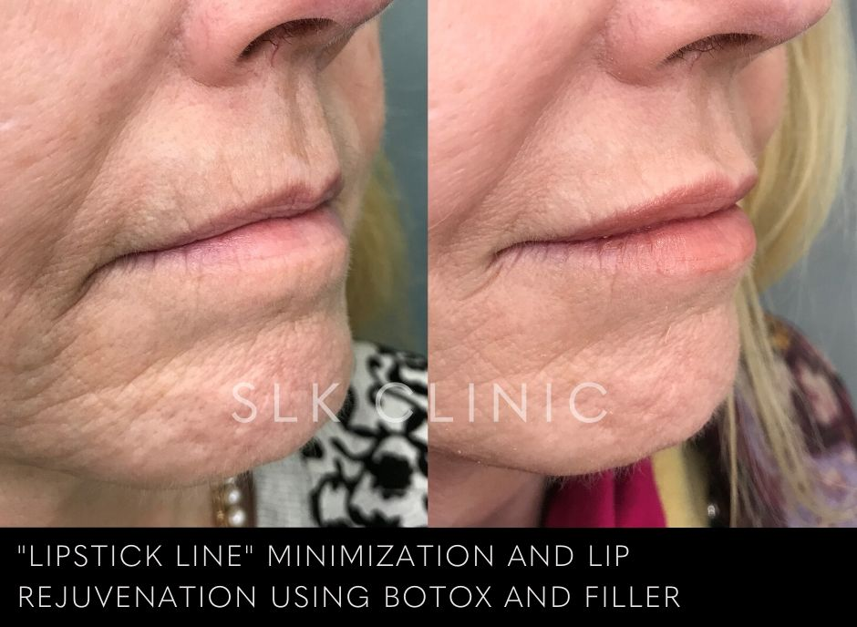 results of one syringe of juvederm lip filler on a 50 year old woman