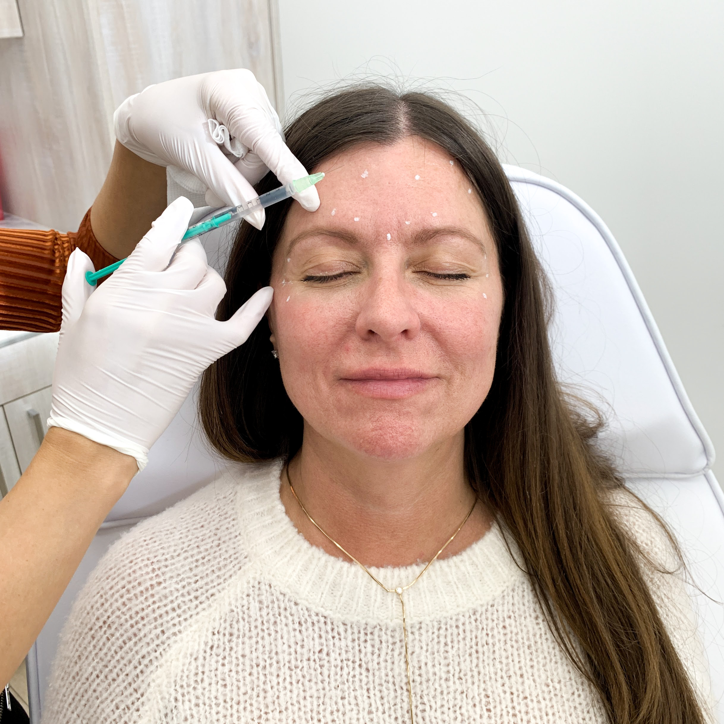 woman getting botox injections in her forehead
