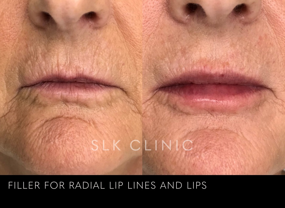 lipstick lines and smoker's lines reduction using lip filler