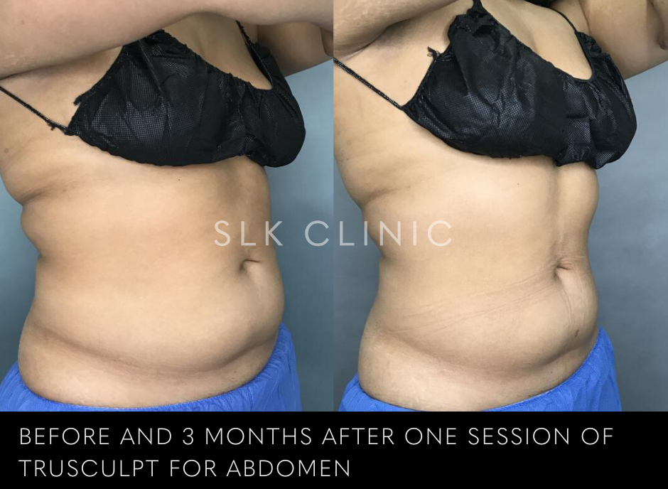 trusculpt before and after result on abdomen of woman of color at slk clinic nashville