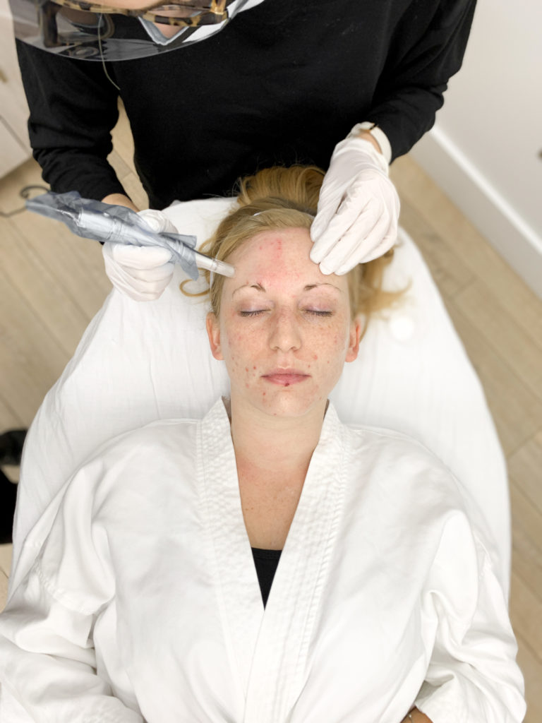 young woman receiving microneedling to help acne and acne scarring at SLK dermatology nashville