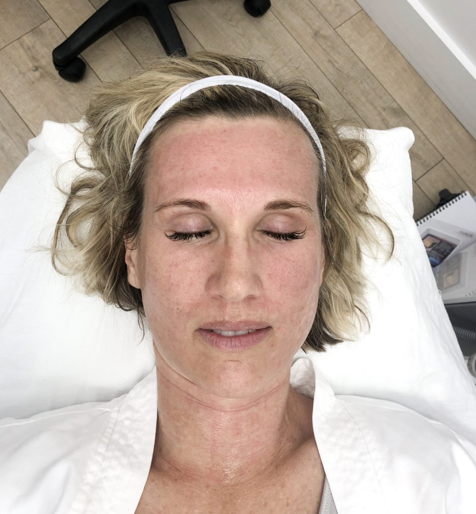 woman's red face immediately after vivace skin tightening downtime