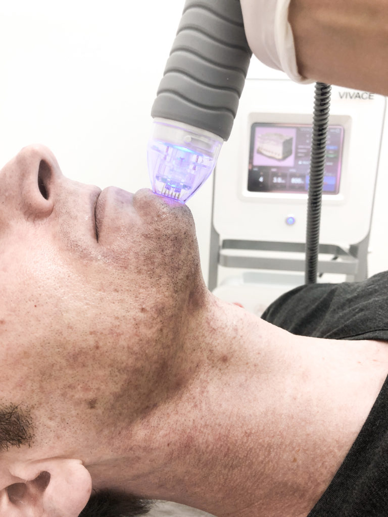 man receiving vivace on his face and neck