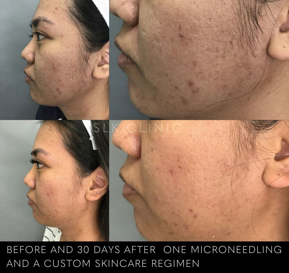 asian woman's skin before and after microneedling in nashville