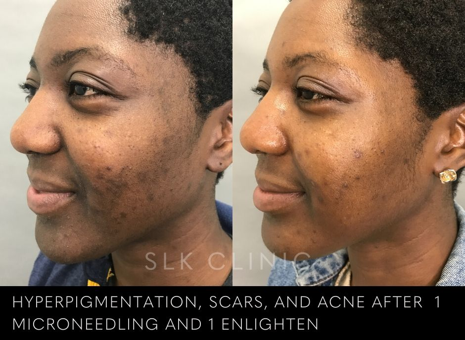 revepeel enlighten mask skin result on black woman