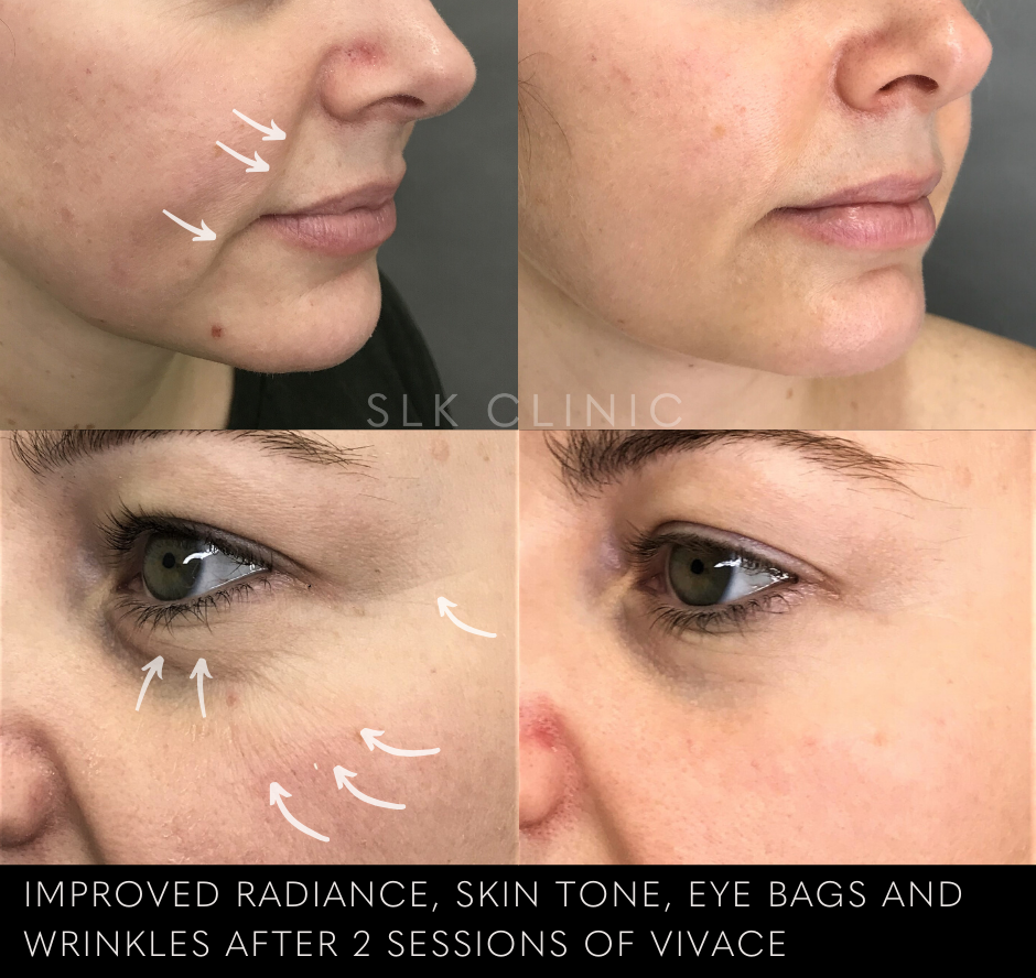 before and after photo of vivace morpheus treatment in nashville