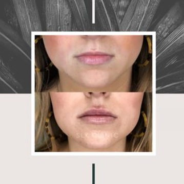 natural lip filler results before and after