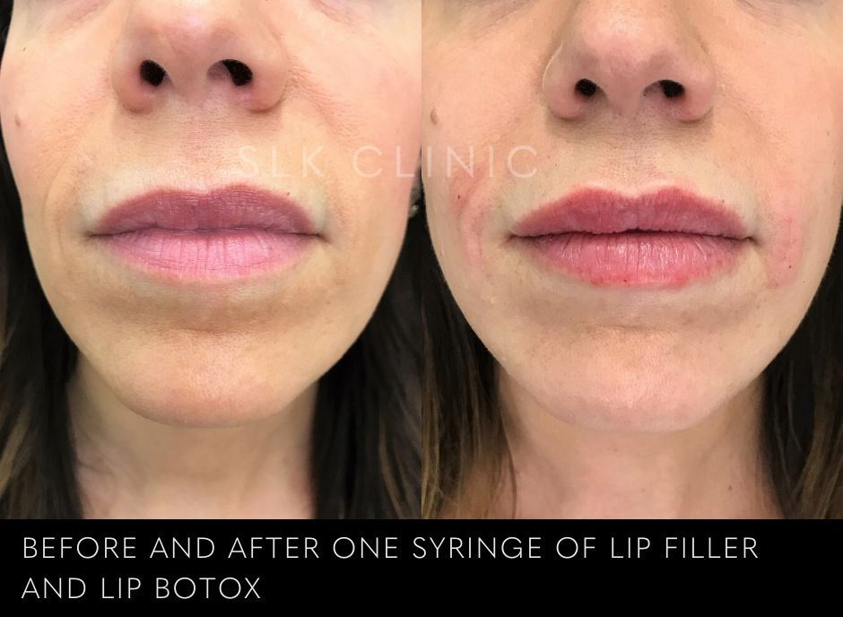 result of filler used to correct asymmetrical uneven lips and reduce lipstick bleed lines