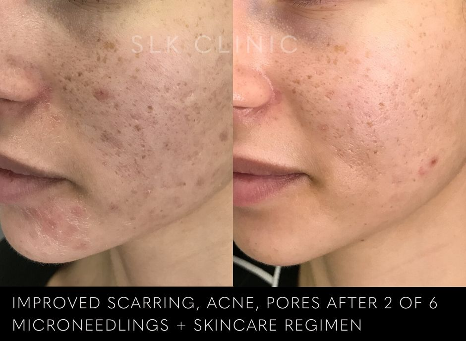 before and after 2 sessions of microneedling for dark acne scarring marks