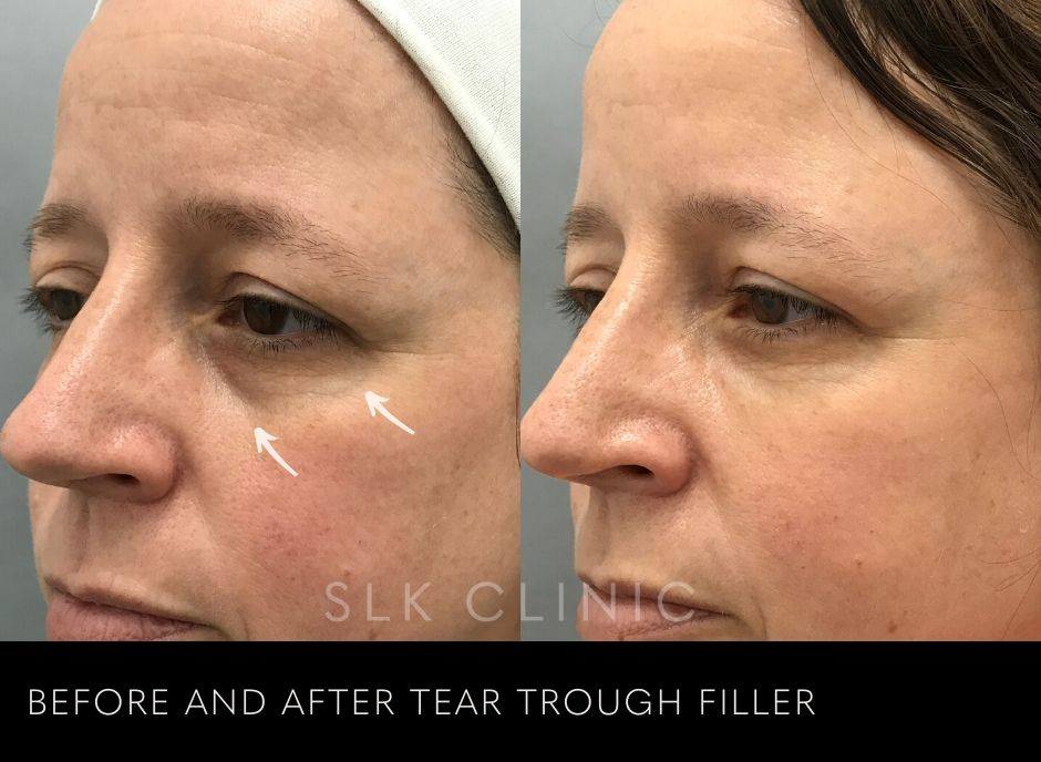 results of filler in the tear trough or dark under eye circle on 40 year old patient in nashville
