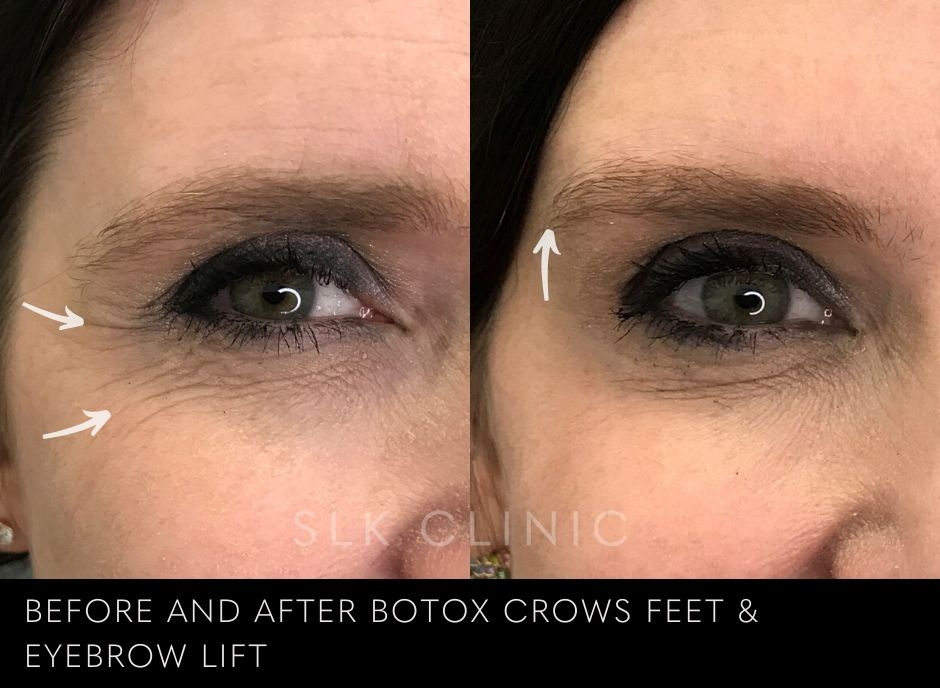 results of botox brow lift in nashville tennessee