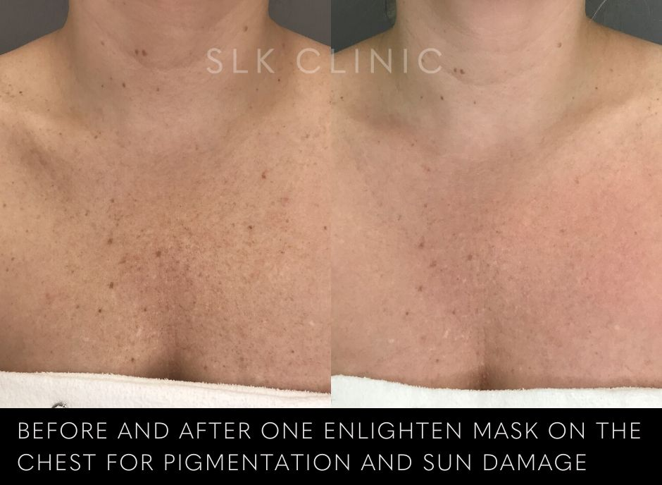 treating chest pigment and sun damage with peel
