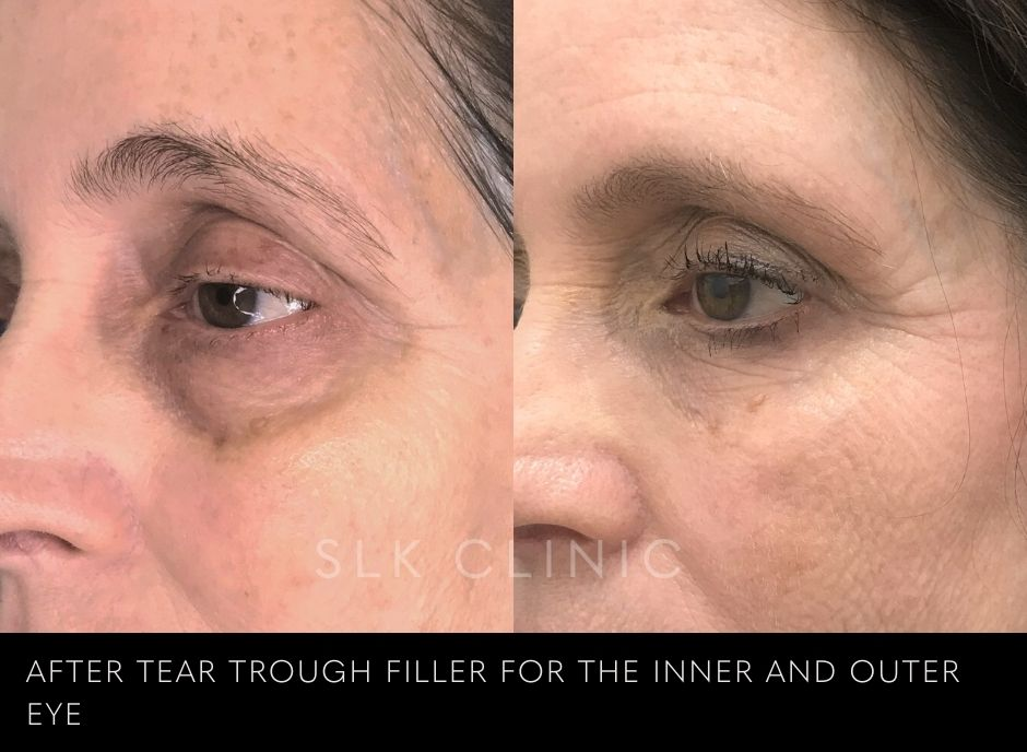 under eye dark circle treatment results at SLK Nashville woman in her 50s