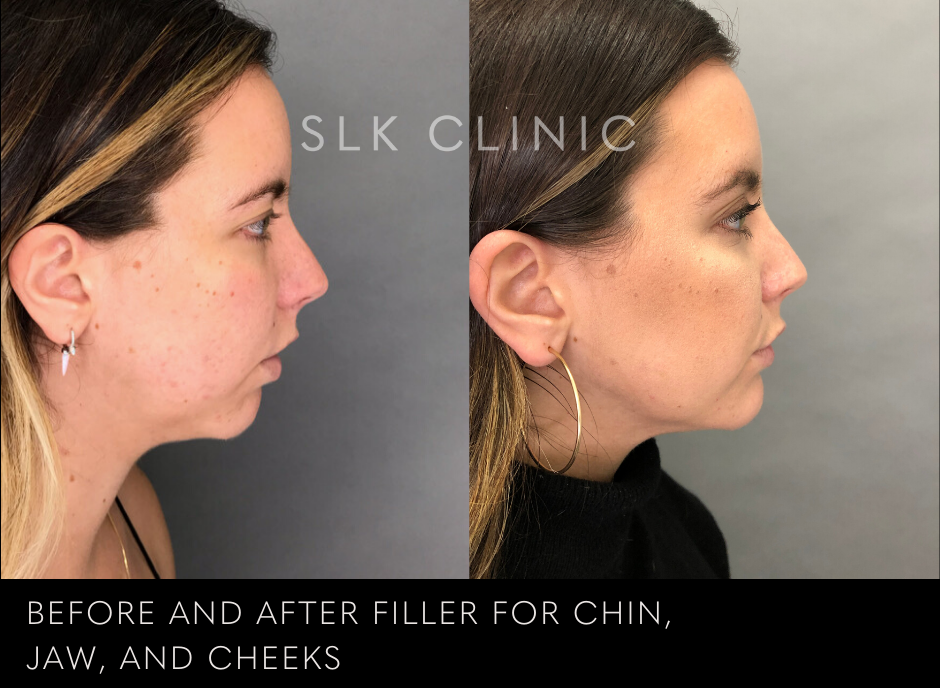 best chin and jaw filler augmentation results slk clinic