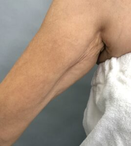 loose-crepey-arm-skin-that-will-receive-hyperdilute-radiesse-injections