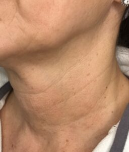 loose-neck-skin-that-will-receive-hyperdilute-radiesse-injections-for-skin-tightening