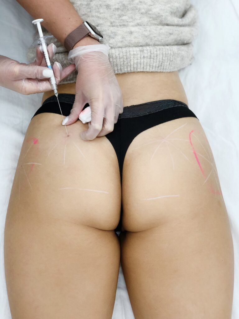 buttock augmentation using radiesse