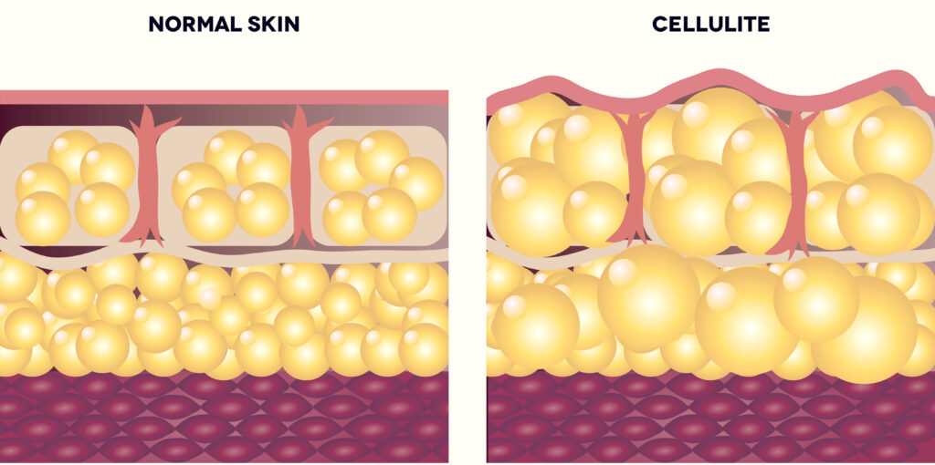 cellulite beneath the skin diagram