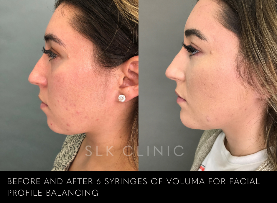 before and after photo of voluma filler in cheeks and chin