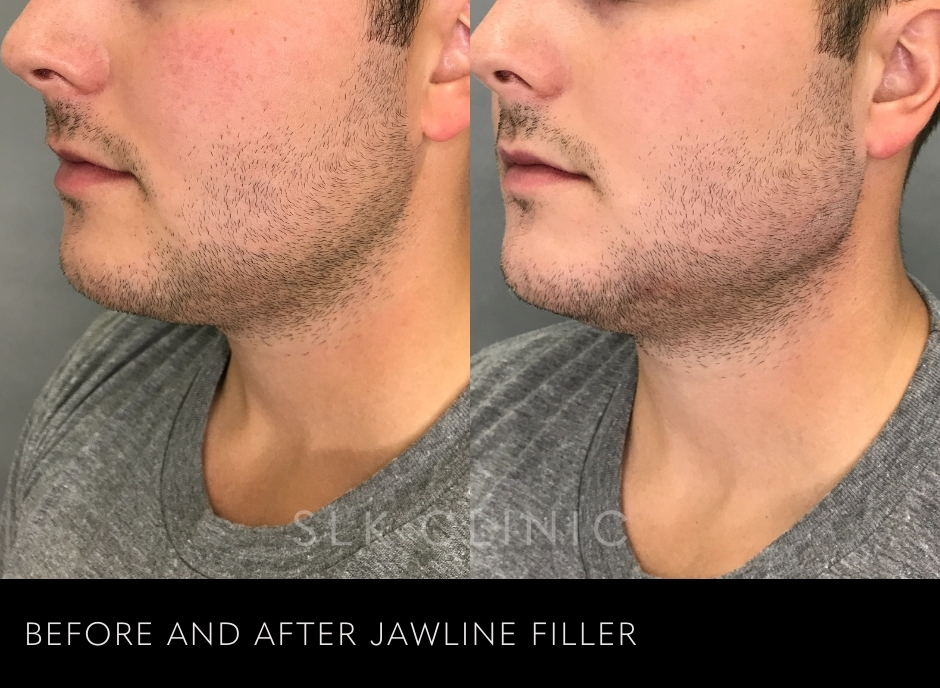 before and after of radiesse jawline filler